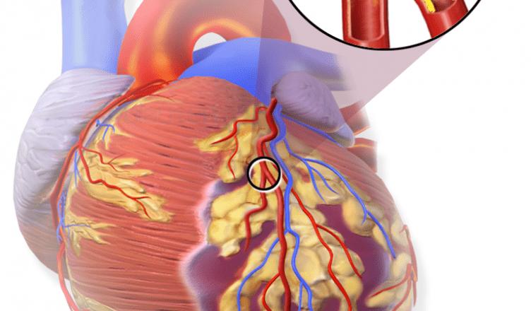Paro Cardiaco Súbito
