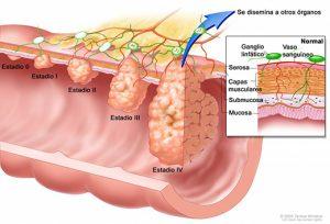 Síntomas de cáncer metastásico