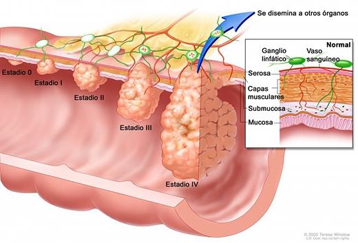 Cancer-metástasis