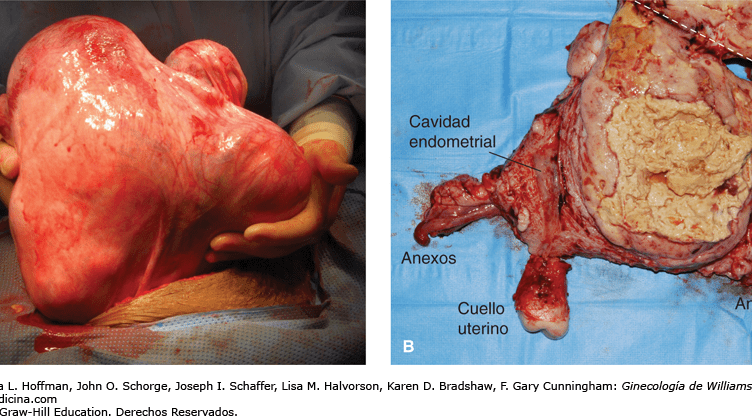 Sarcoma uterino