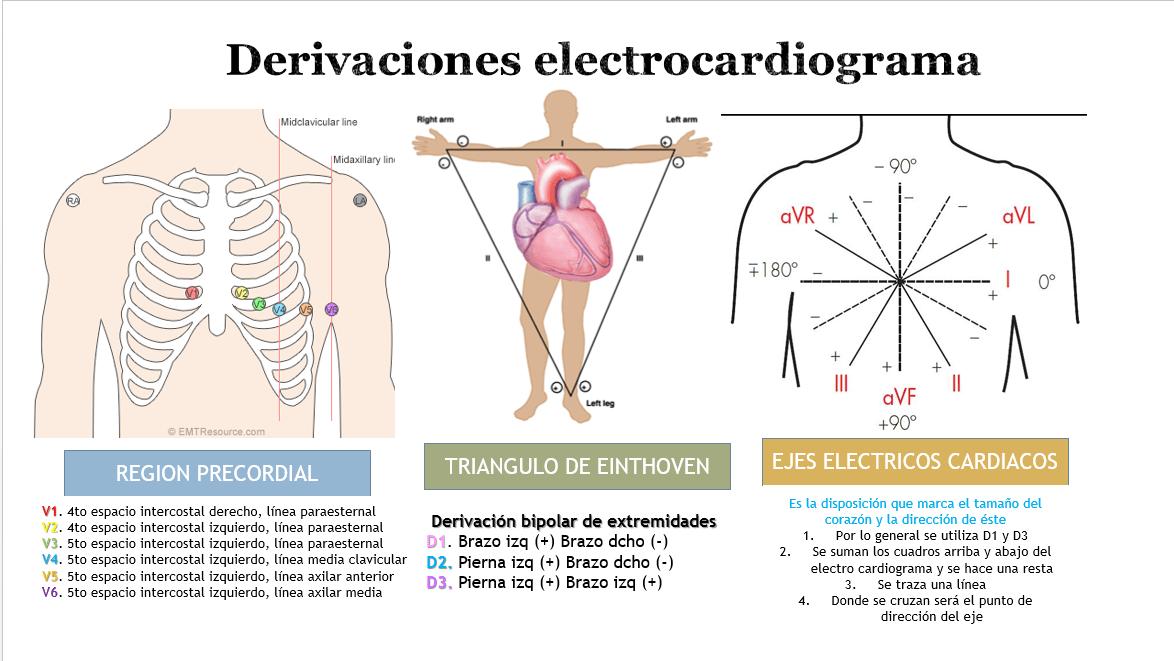 Cómo Se Colocan Los Electrodos Del Electrocardiograma