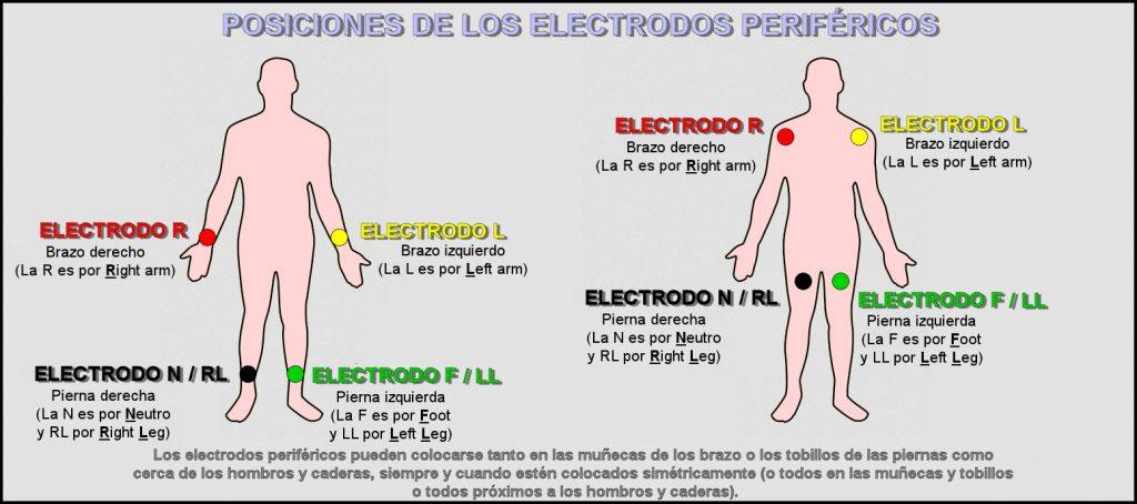 Electrodos Periféricos