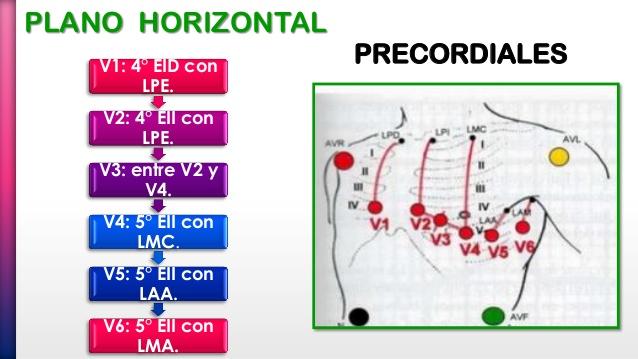 Electrodos Precordiales
